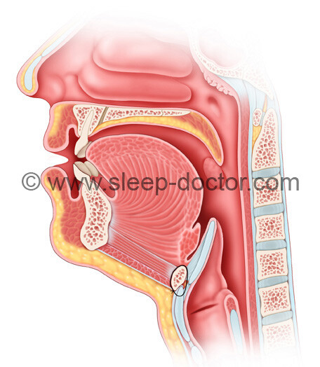 postoperative image of side view after hyoid suspension for sleep apnea