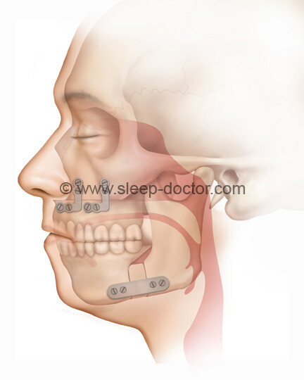 postoperative image after maxillomandibular advancement surgery for sleep apnea