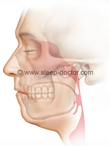 preoperative image after maxillomandibular advancement surgery for sleep apnea
