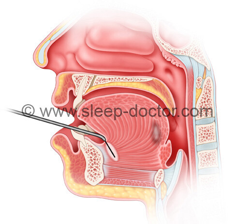 treatment of the front of the tongue in tongue radiofrequency surgery for sleep apnea