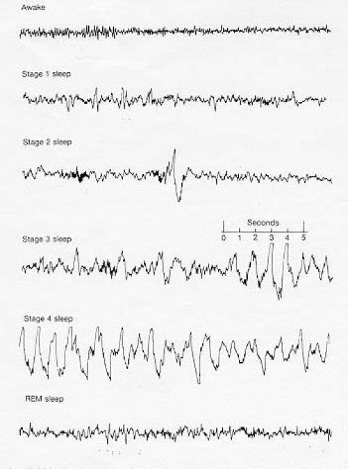 Normal Sleep Cycle Diagram Rem Sleep Cycles