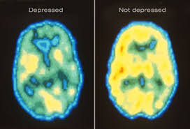 Depression can be pinpointed to a brain region.