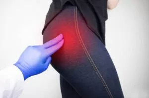 What Are The Main Causes Of Piriformis Syndrome