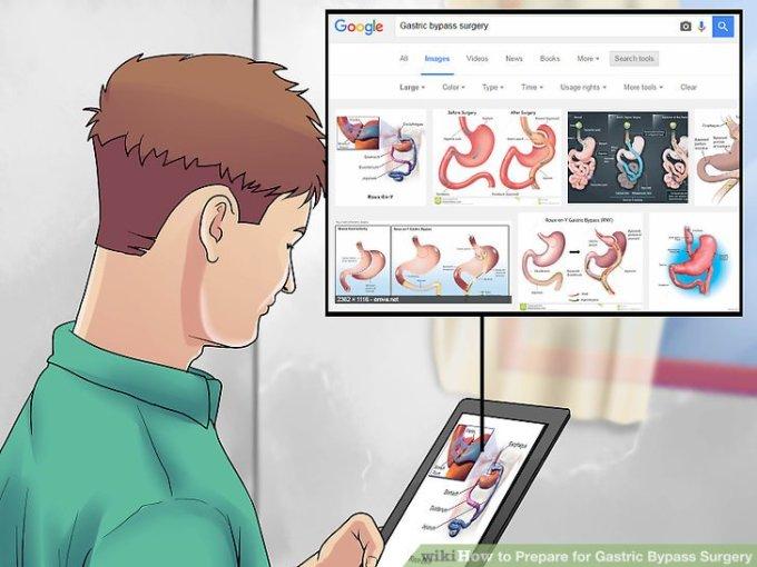 Operatie Sleeve gastric