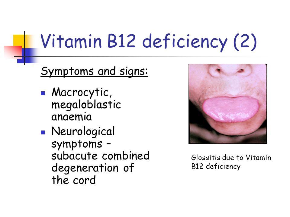 Vitamin b12 deficiency  Research paper Sample  einsteinisdeadcom