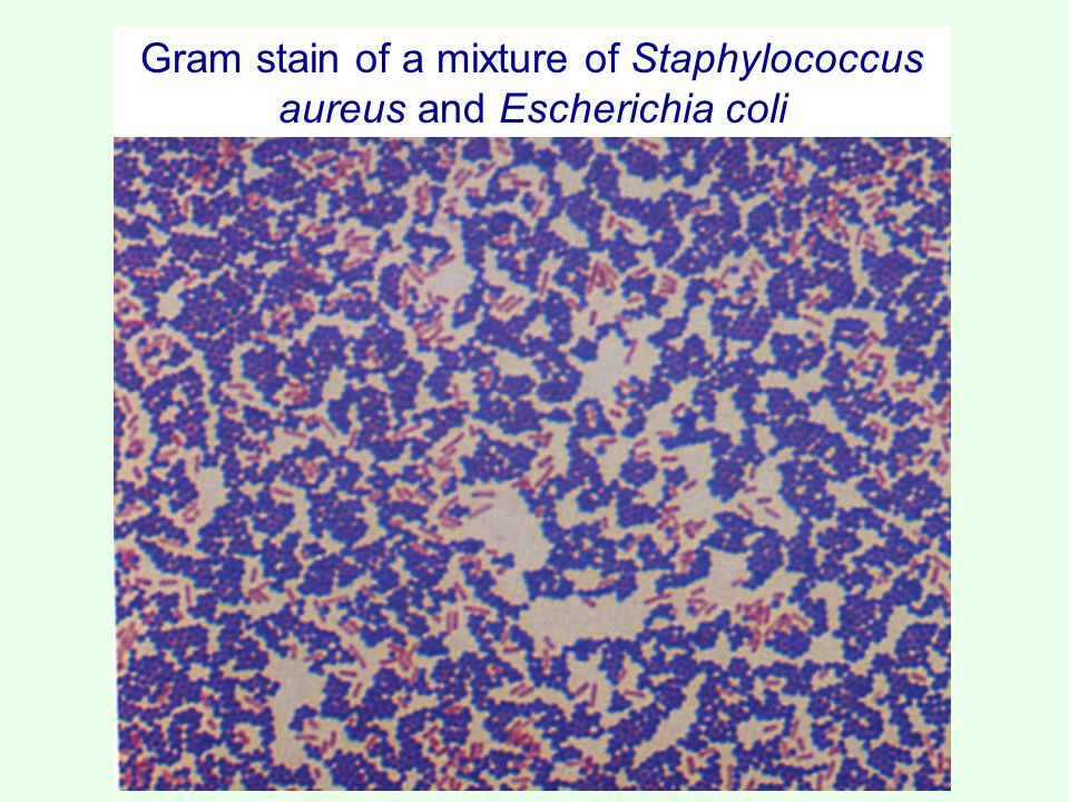 Staining bacteria cells  ppt video online download