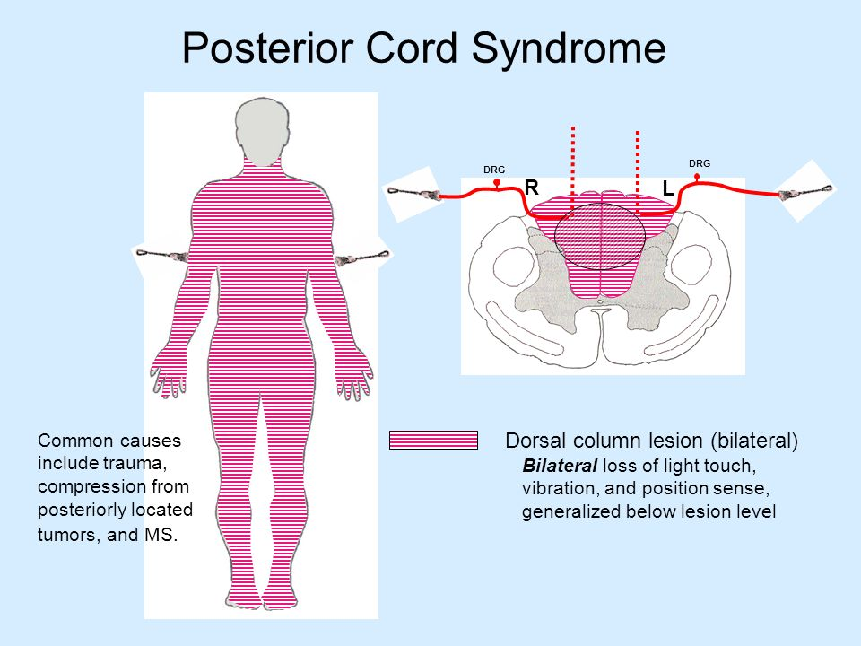 Image result for posterior cord syndrome
