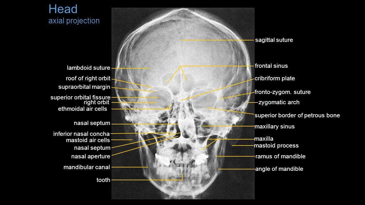 Transverse Foramen Cervical Spine