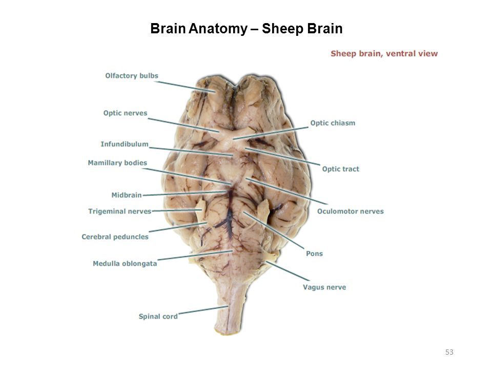 Cerebral Peduncle Sheep Brain
