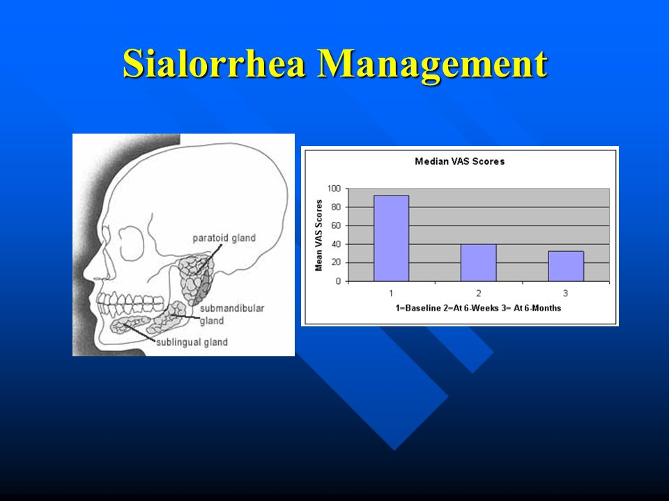 ALSManagement and Upcoming Clinical Trials  ppt video