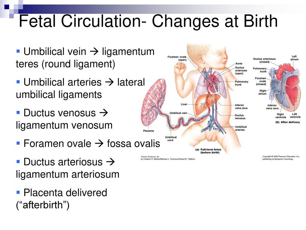 Ductus Arteriosus On Baby