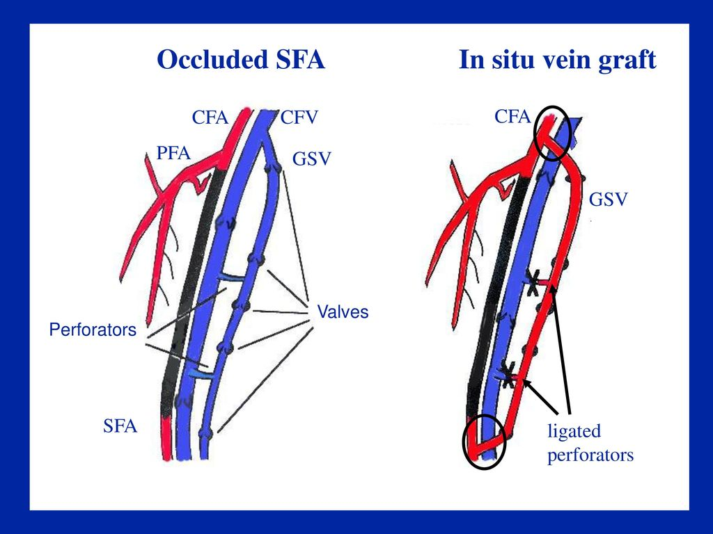 diagram of a heart bypass graft harbor breeze ocean city md chapter 13 evaluation arterial grafts and stents