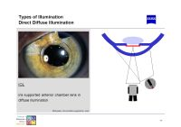 Slit Lamp Training. Eye Exam Services At Premier Family ...