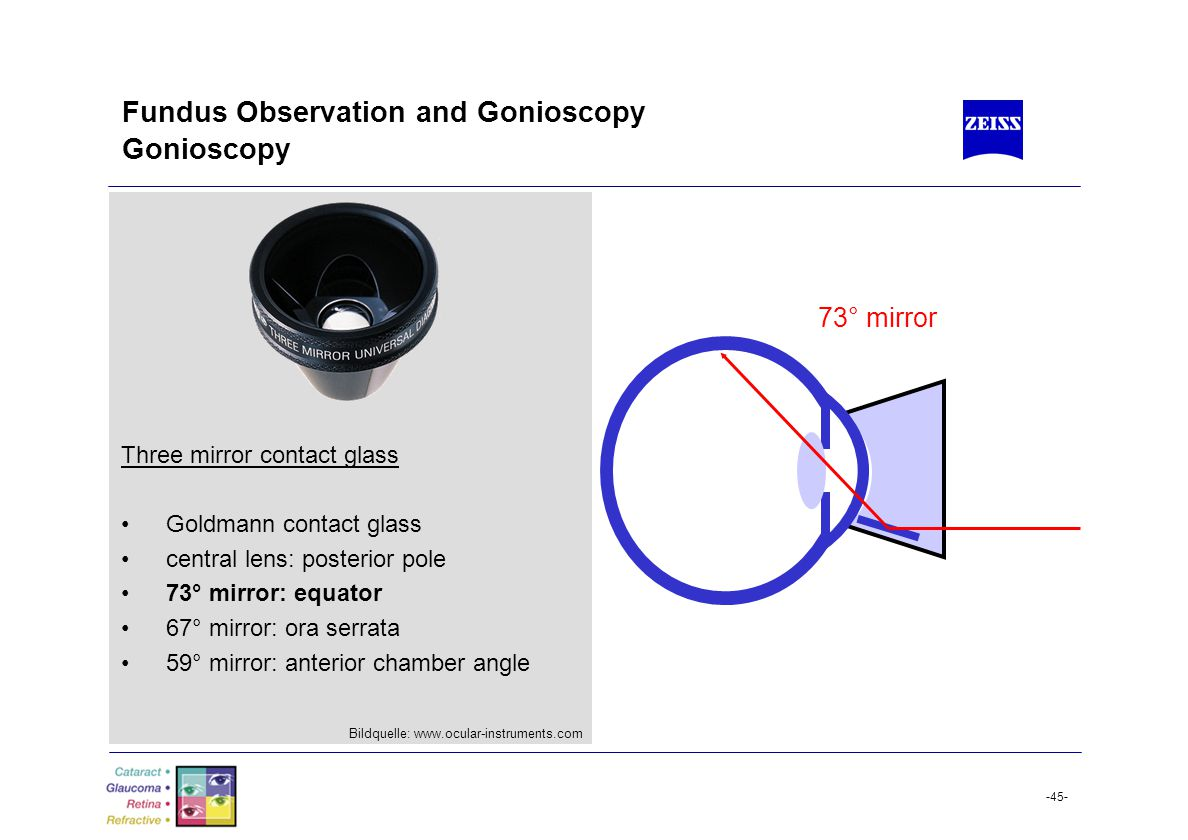 Slit Lamp Training Tim Buckley Product Manager.