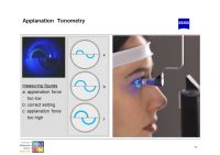 Slit Lamp Training Tim Buckley Product Manager. - ppt ...