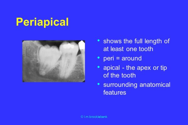 The clinical value of Xray images of the teeth and jaws