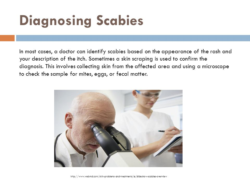 What Is Scabies Scabies Is Not An Infection But An Infestation Tiny Mites Called Sarcoptes
