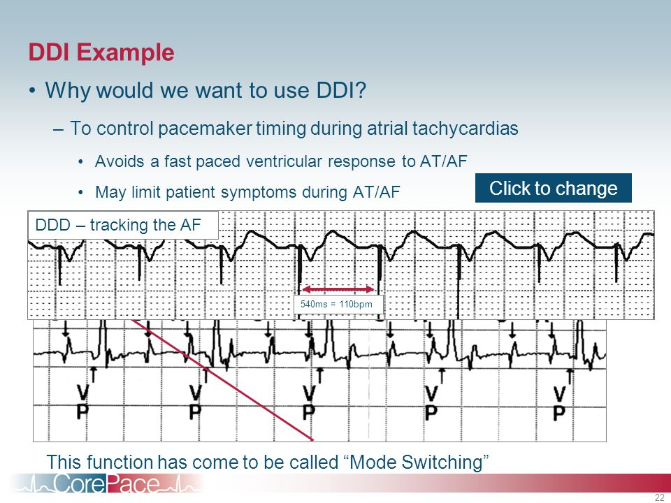 Single And Dual Chamber Pacemaker Timing Module 6 Ppt