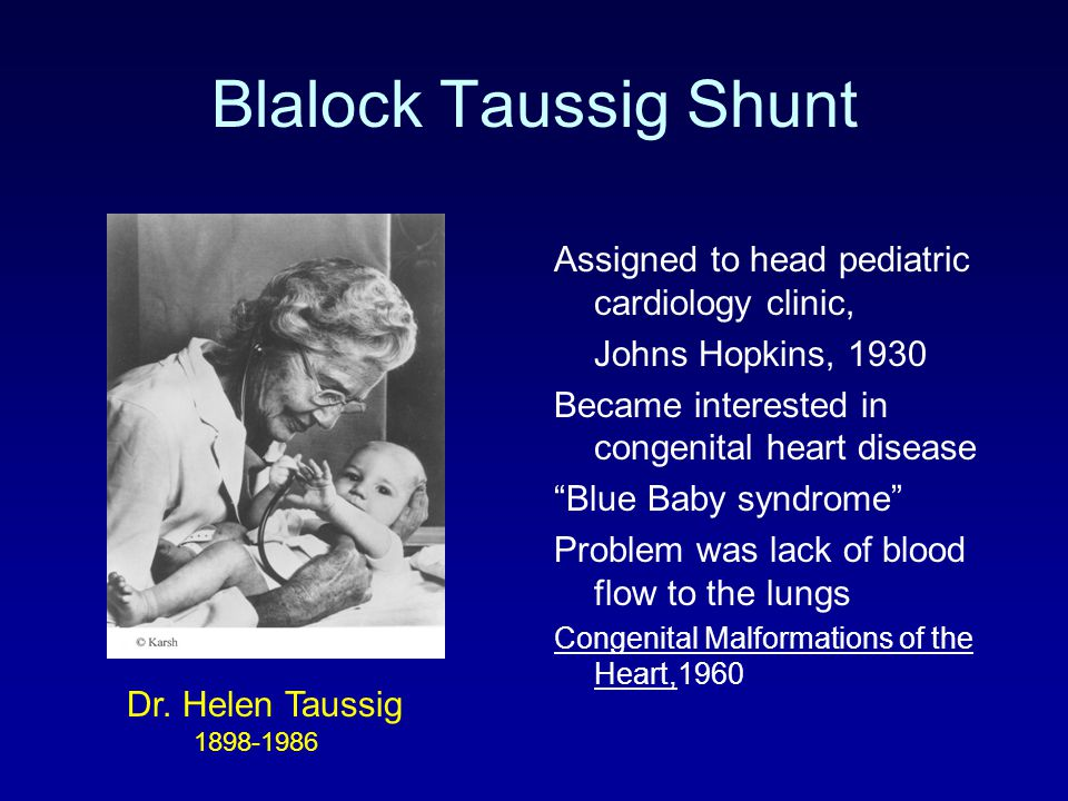 The Times They Have Changed 30 years of Cardiac Care for Children  ppt video online download