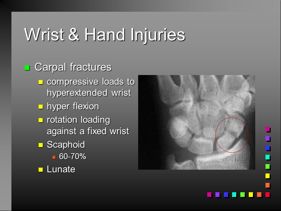 Chapter 7  Upper Extremity Injuries  ppt video online download