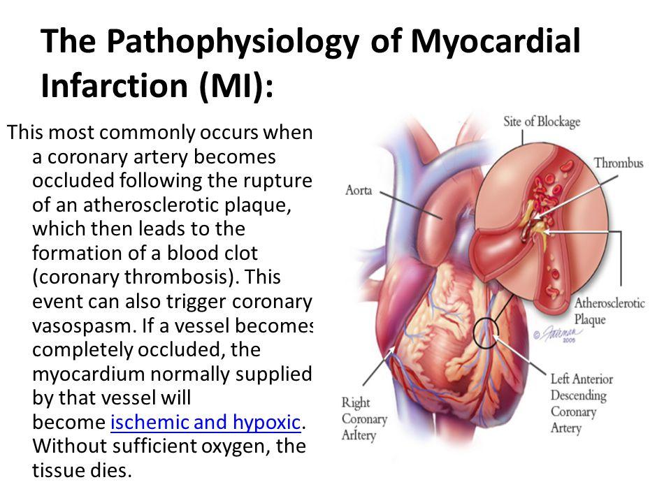 Cardiac Tissue Function