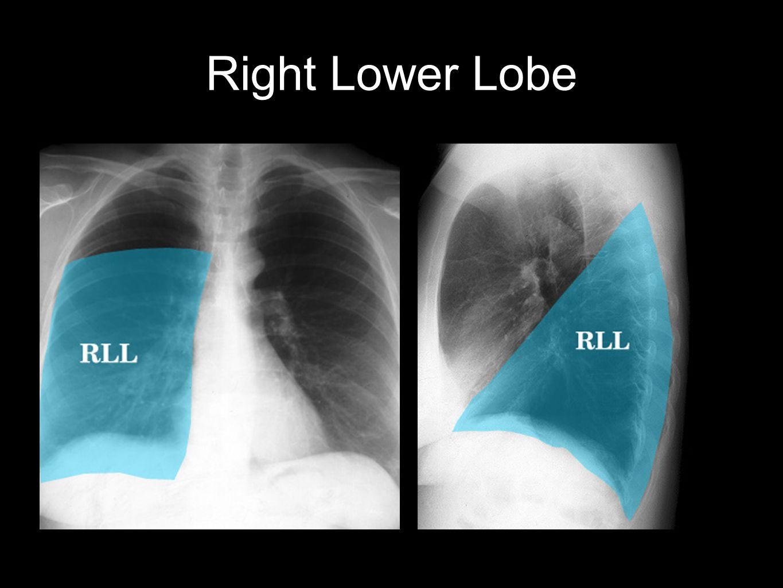 Bones Anatomy Chest Upper