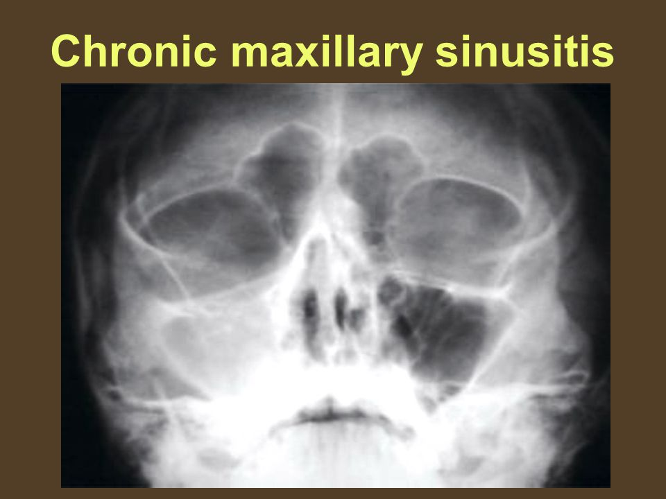 X Ray Infection Sinus