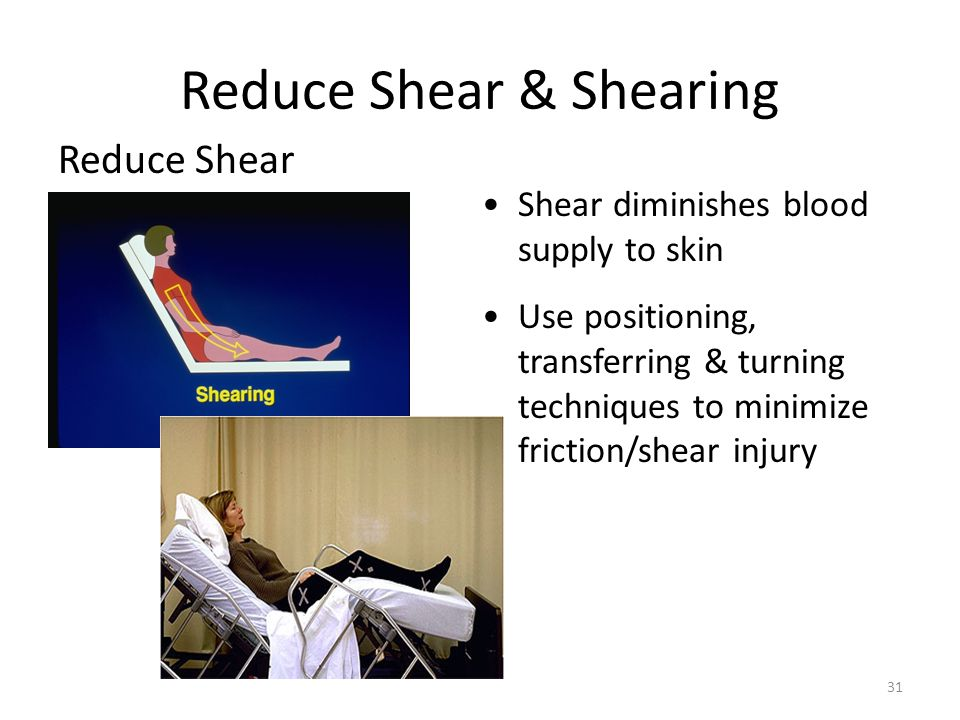 chairs cushion pads office chair wheel base skin assessment and pressure ulcer prevention - ppt download