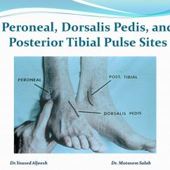 Foot Pulses Diagram Single Phase Contactor With Overload Wiring Peroneal Pulse Related Keywords - Long Tail Keywordsking