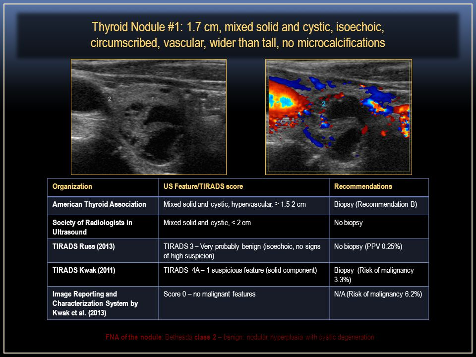 And Mixed Solid Cystic Thyroid Nodule