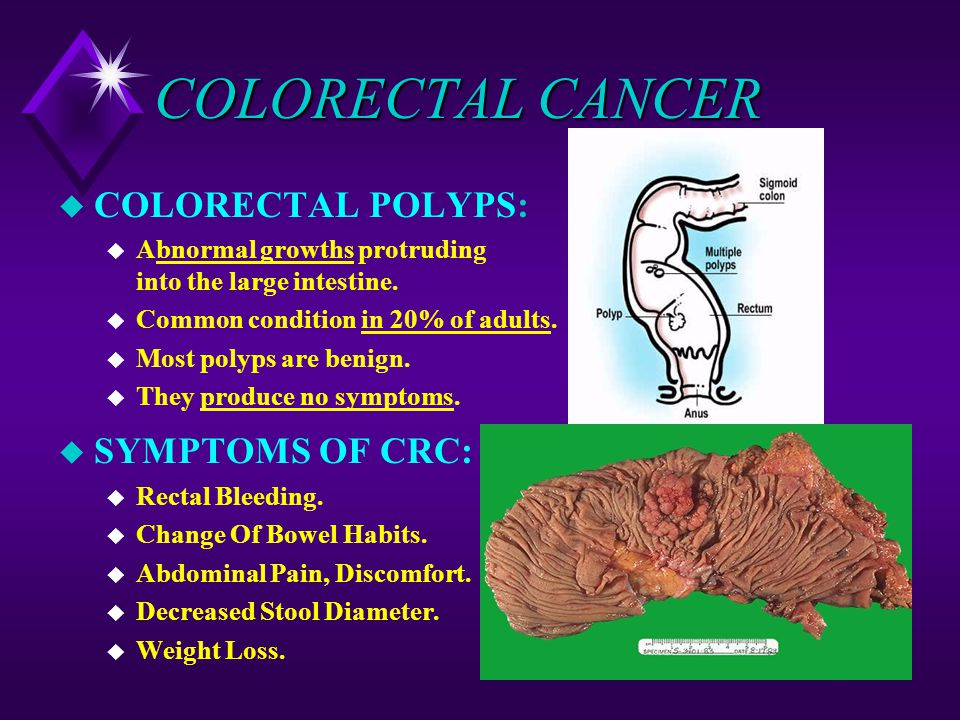 Gallbladder Polyps Natural Treatment