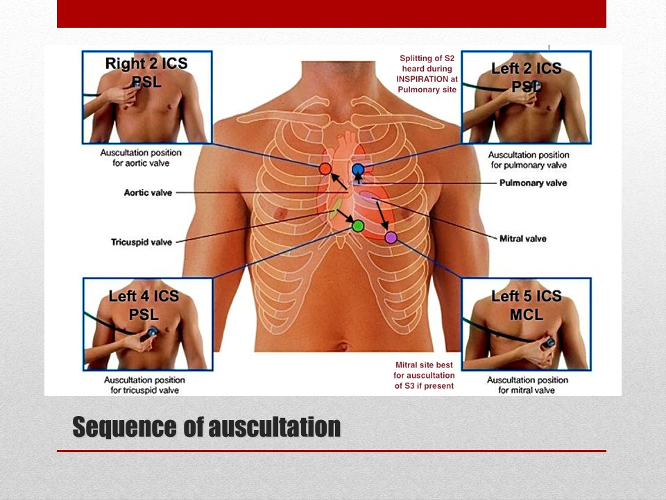 """""""symptoms And Syndromes Based On The Data Of Auscultation"""