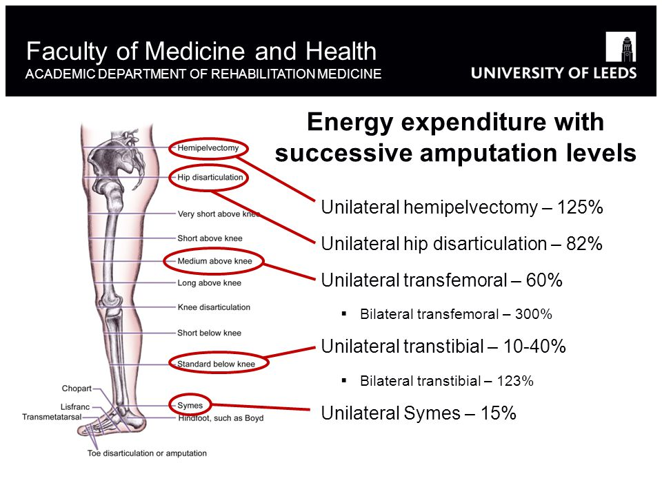 Transtibial Amputation  the biomechanics of cycling with a