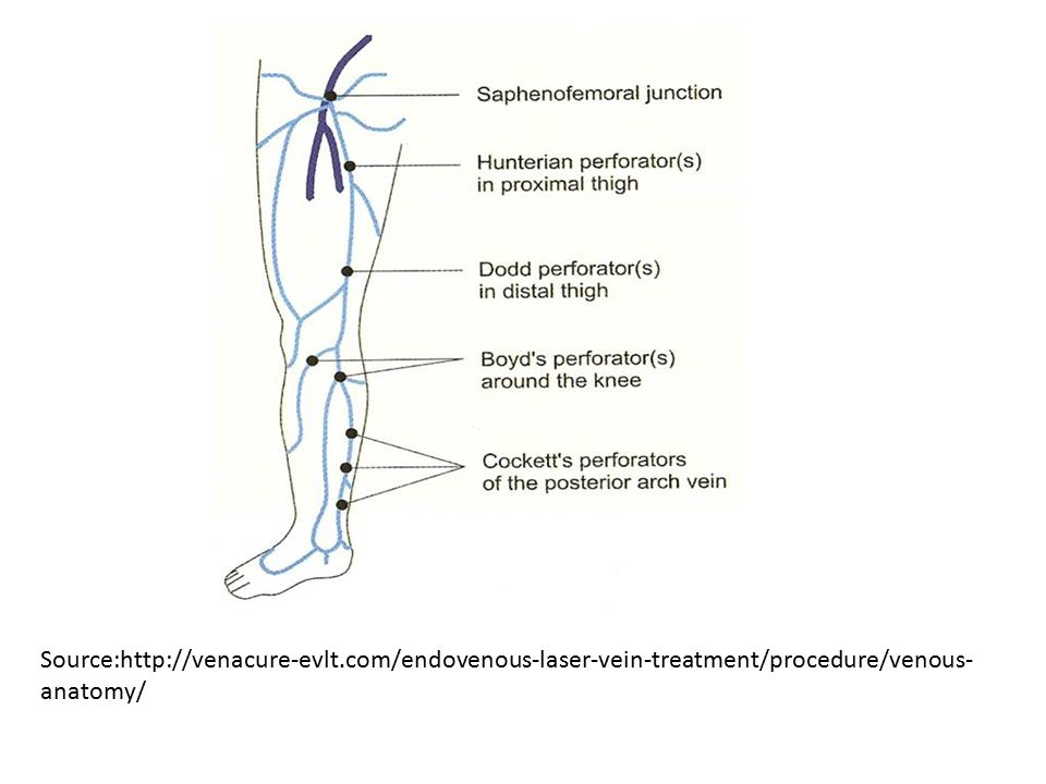 Small Saphenous Vein Thrombosis