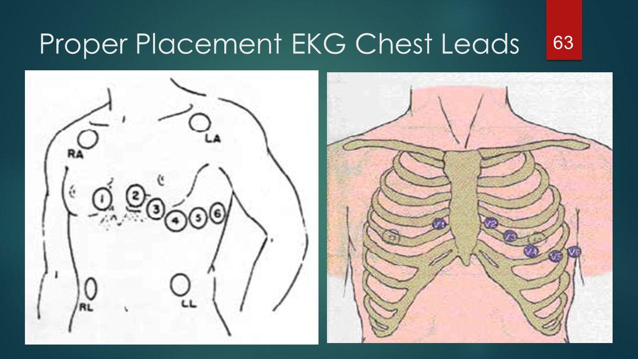 Pediatric 12 Lead Ecg Placement Diagram