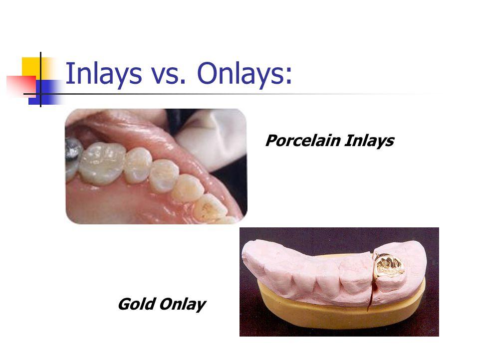 Chapter 1 Dental Materials DAEDHE ppt video online download