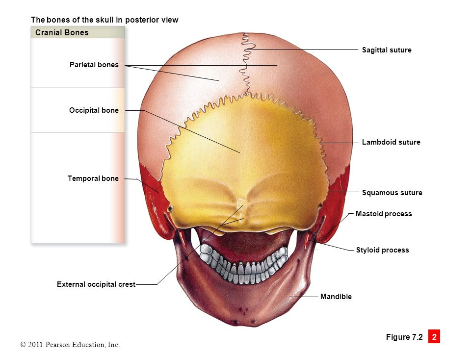 Fractured Right Frontal Skull