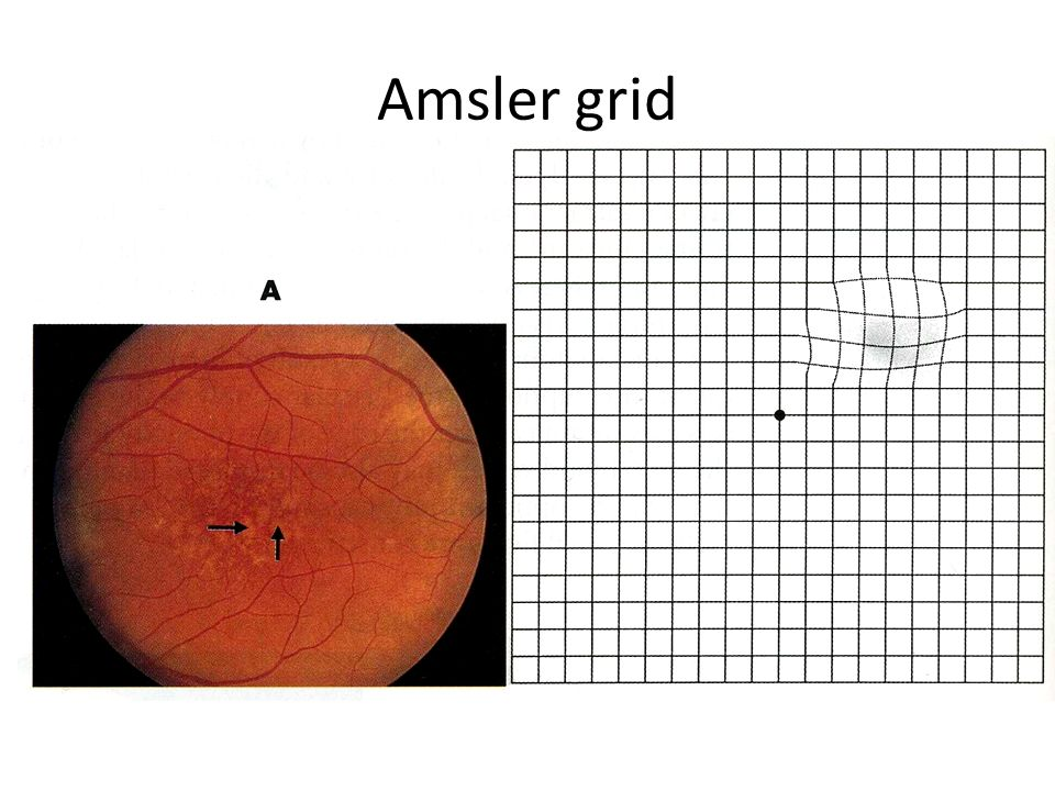 Eye care basics and optical options  ppt video online download