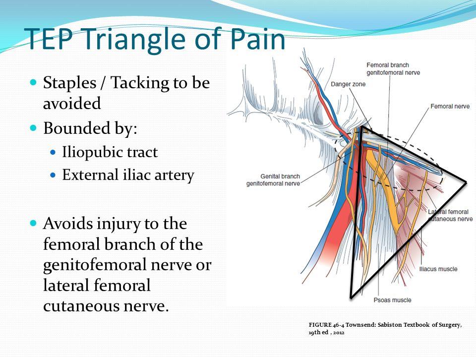 Tapp Inguinal Hernia Repair Anatomy