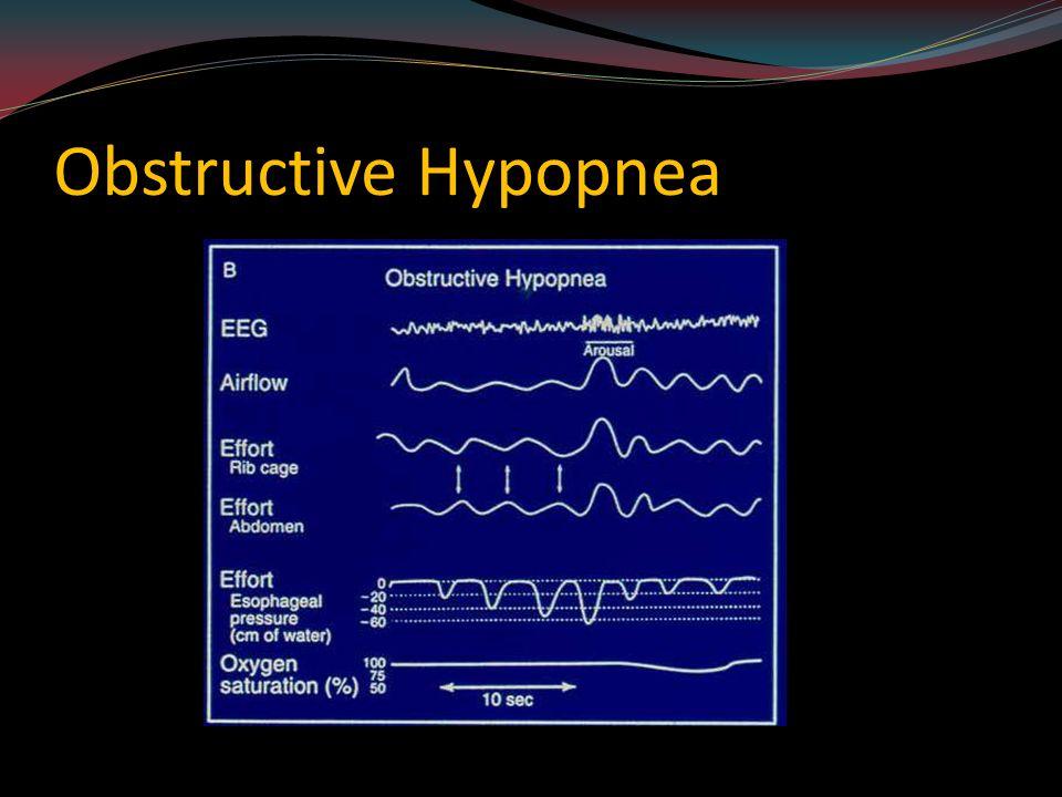 Sleep Disorders Richard E Waldhorn MD Clinical Professor