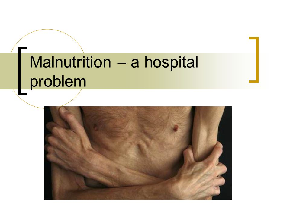 Clinical Dietitians Who we are and what we do Petra Teufl NZRD  ppt video online download