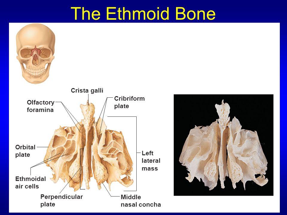 Luxury Ethmoid Mold - Anatomy Ideas - yunoki.info