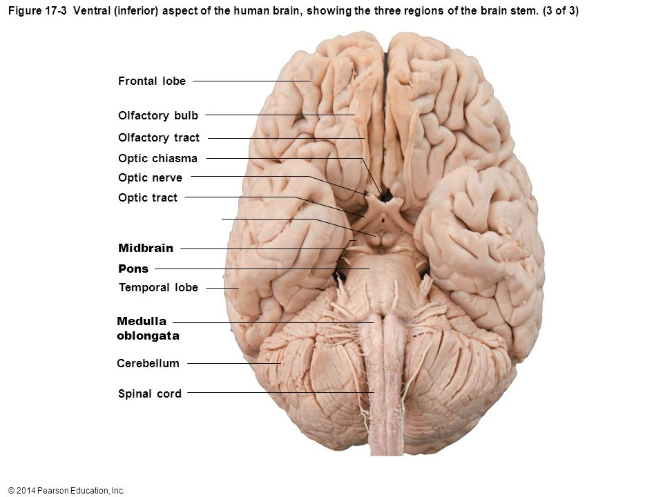 sheep brain superior view diagram hand tendons exercise 17: and cranial nerves - ppt video online download