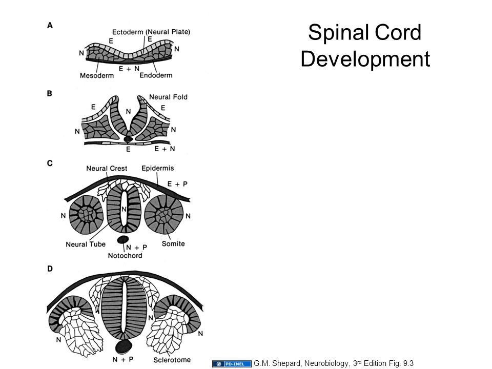 Attribution: Department of Neurology, ppt video online