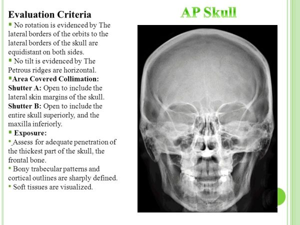 Radiographic Technique II ppt video online download