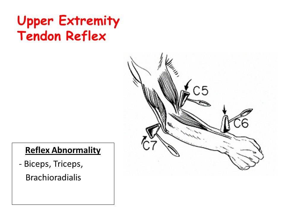 Manual muscle testing upper extremity pdf