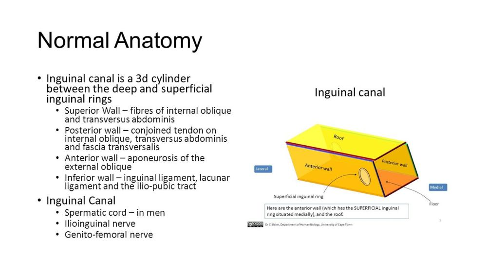 medium resolution of normal anatomy inguinal canal is a 3d cylinder between the deep and superficial inguinal rings
