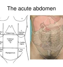6 the acute abdomen [ 1024 x 768 Pixel ]