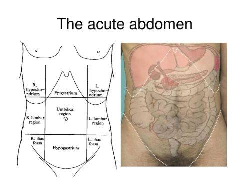 small resolution of 6 the acute abdomen