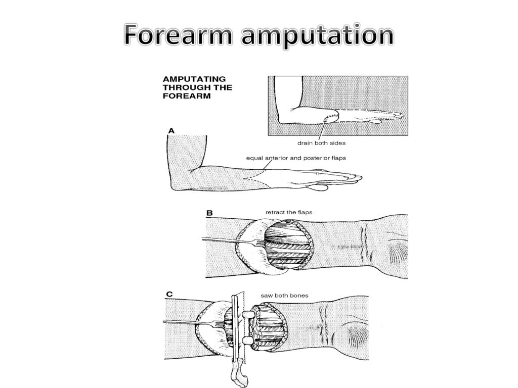 hight resolution of 46 forearm amputation